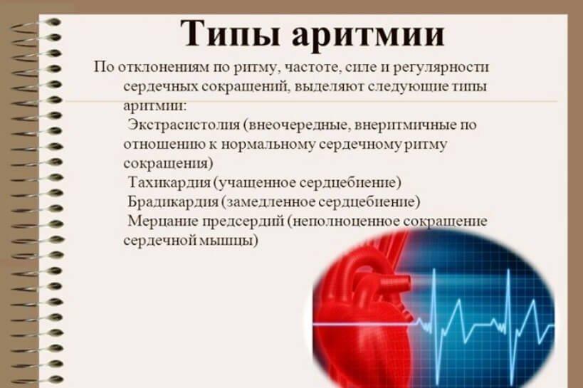 Лечение мерцающей аритмии