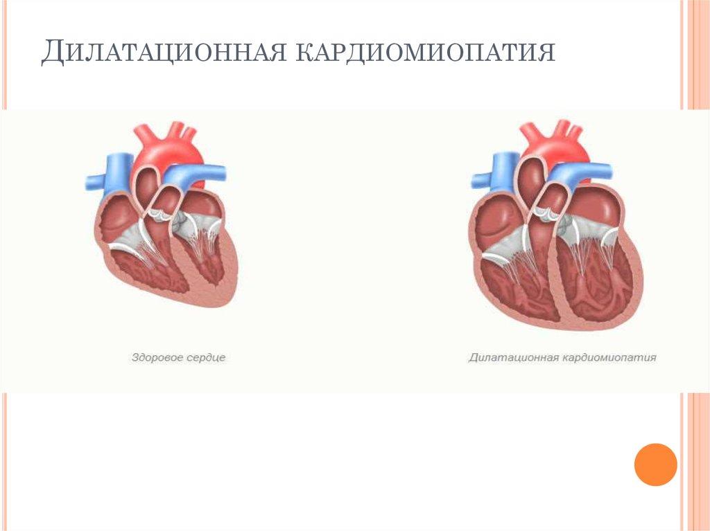 Аритмогенная правожелудочковая кардиомиопатия