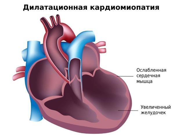 Аритмогенная дисплазия правого желудочка. аритмогенная правожелудочковая кардиомиопатия