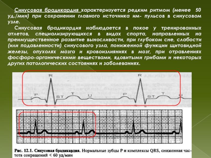 Брадикардия. причины, симптомы, признаки, диагностика и лечение патологии :: polismed.com