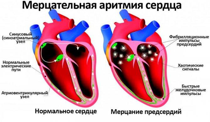 Щитовидная железа и брадикардия