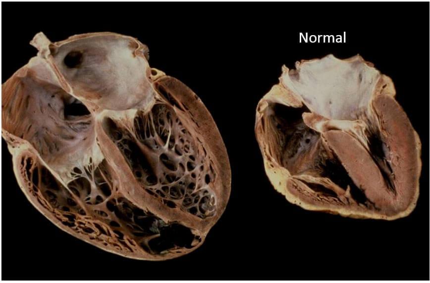 Глава 12. кардиомиопатии и миокардиты