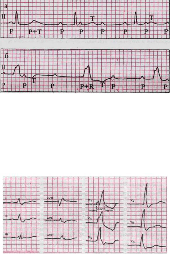 Ав-блокада - кардиолог - сайт о заболеваниях сердца и сосудов