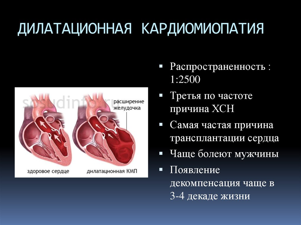 Все о кардиомиопатии: что это такое, виды, симптомы и лечение
