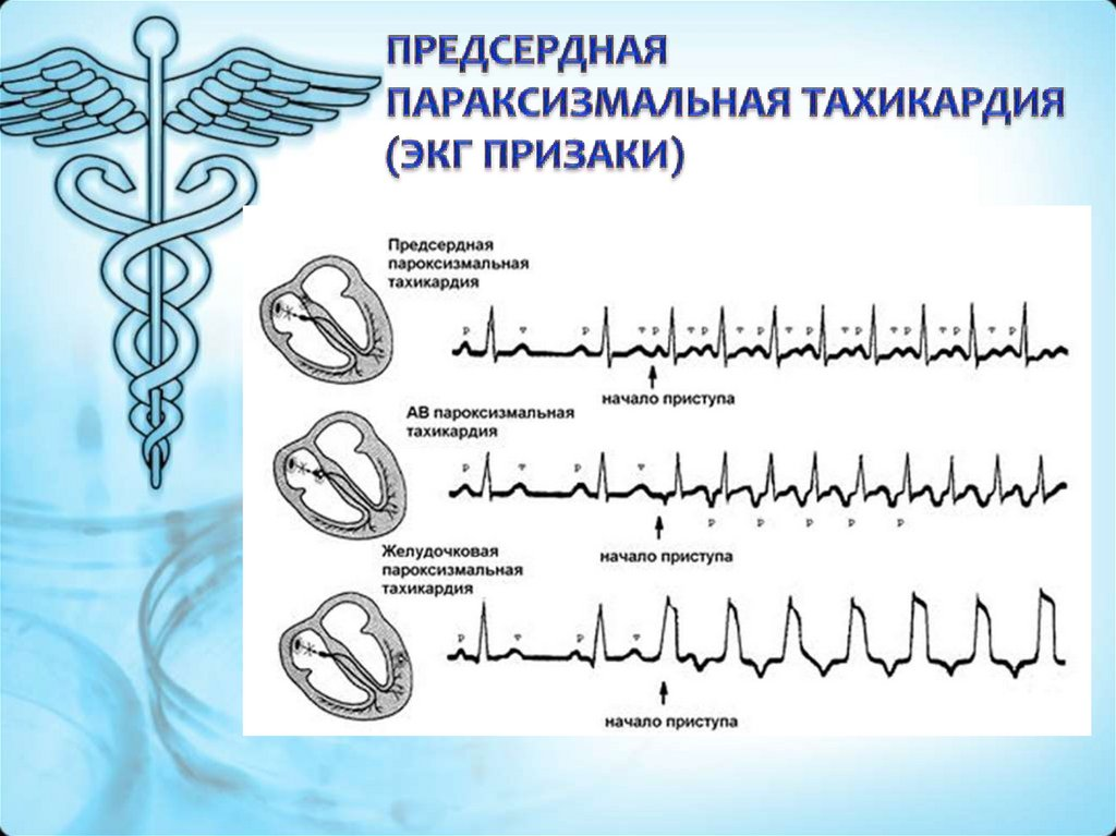 Атриовентрикулярная реципрокная тахикардия: причины, диагностика, на экг | кардио болезни