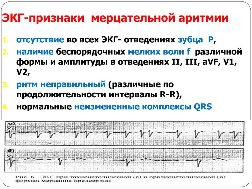 Аритмия сердца — википедия. что такое аритмия сердца