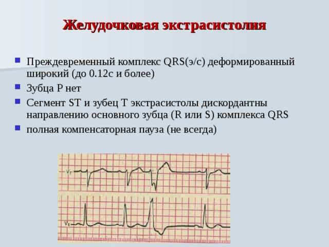 8 причин экстрасистолии сердца по мнению врачей-кардиологов