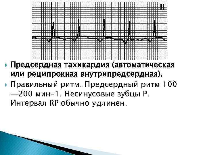 Предсердная тахикардия: признаки, симптомы, диагностика, лечение | кардио болезни