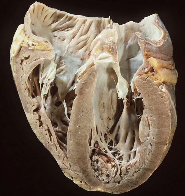 Аритмогенная дисплазия правого желудочка. аритмогенная правожелудочковая кардиомиопатия!