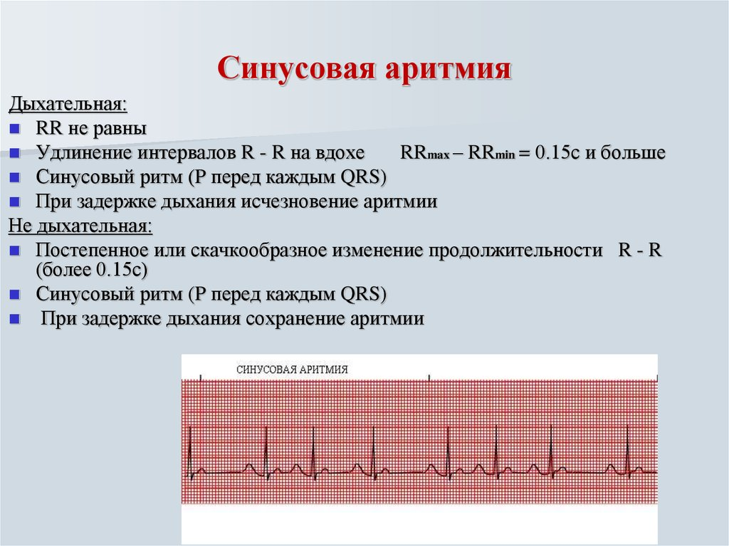 Тахикардия при неврозе — cardio