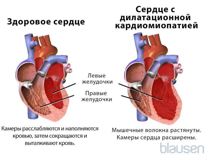 Кардиомиопатия: как развивается, формы, течение, лечение, перспективы
