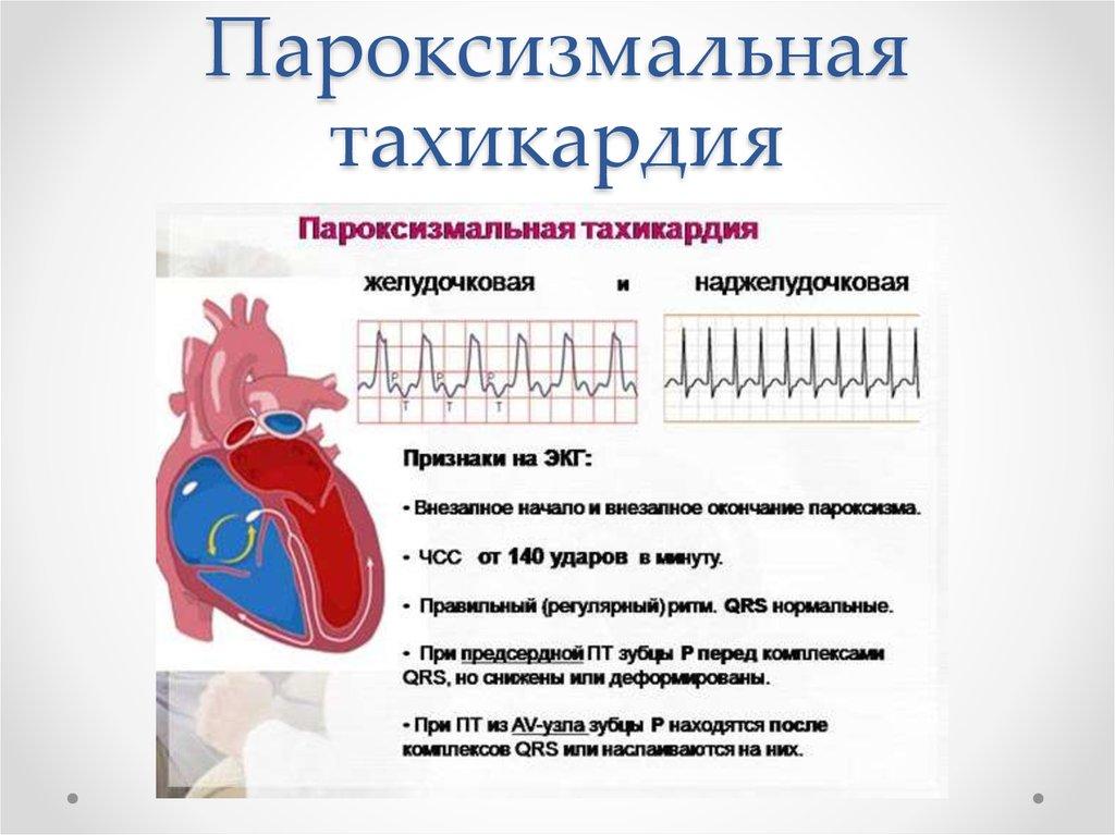 Симптомы и лечение невроза сердца