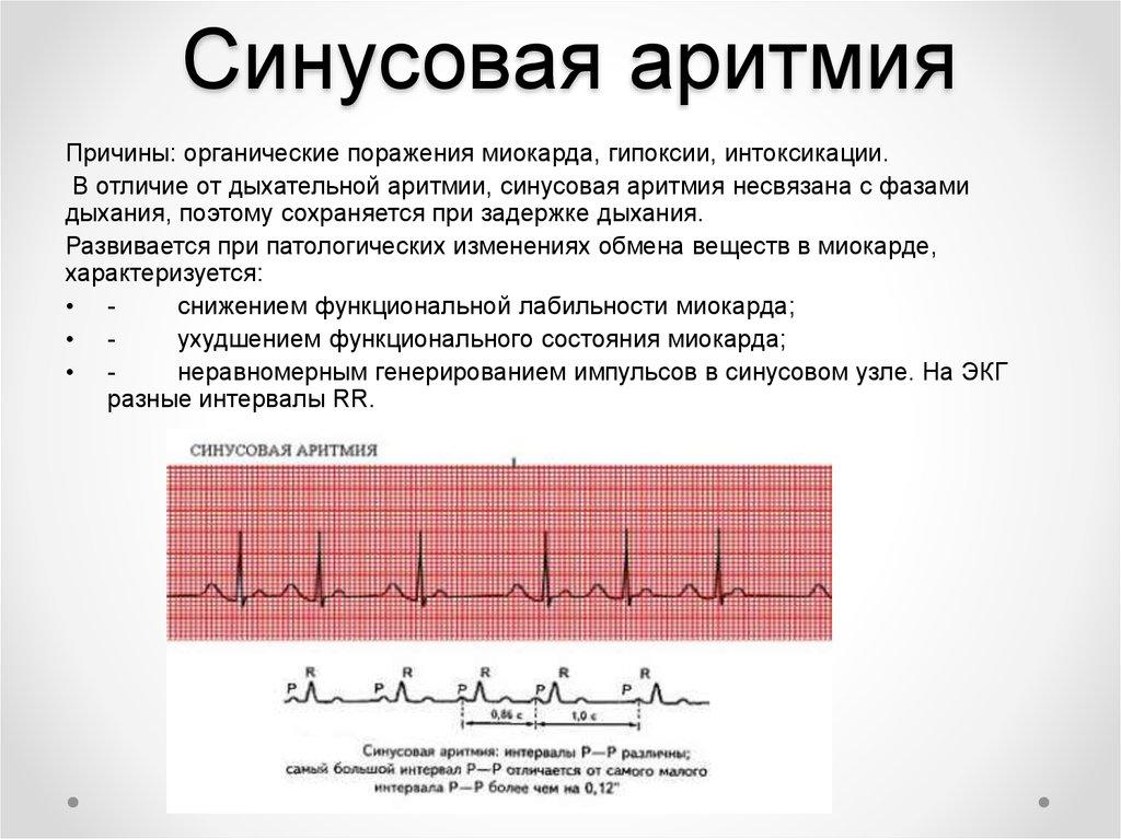 Нарушение ритма сердца: формы, причины развития, симптомы и диагностика, лечение