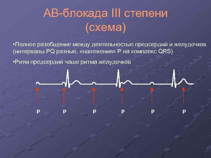 Атриовентрикулярная блокада первой степени: обзор