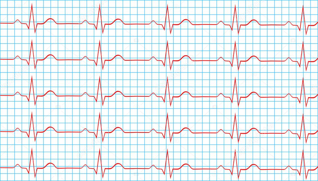 Причины возникновения синусового ритма сердца, симптомы и лечение