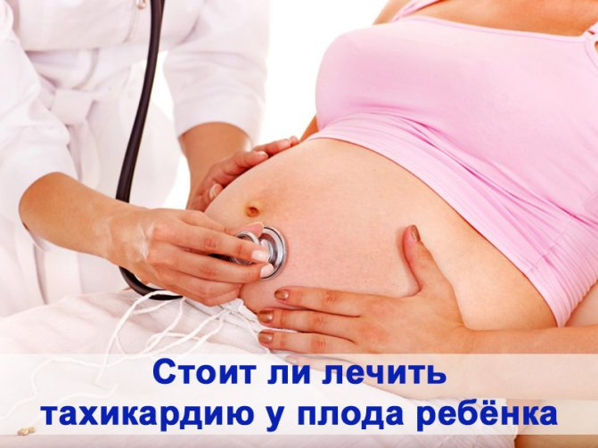Тахикардия у плода при беременности