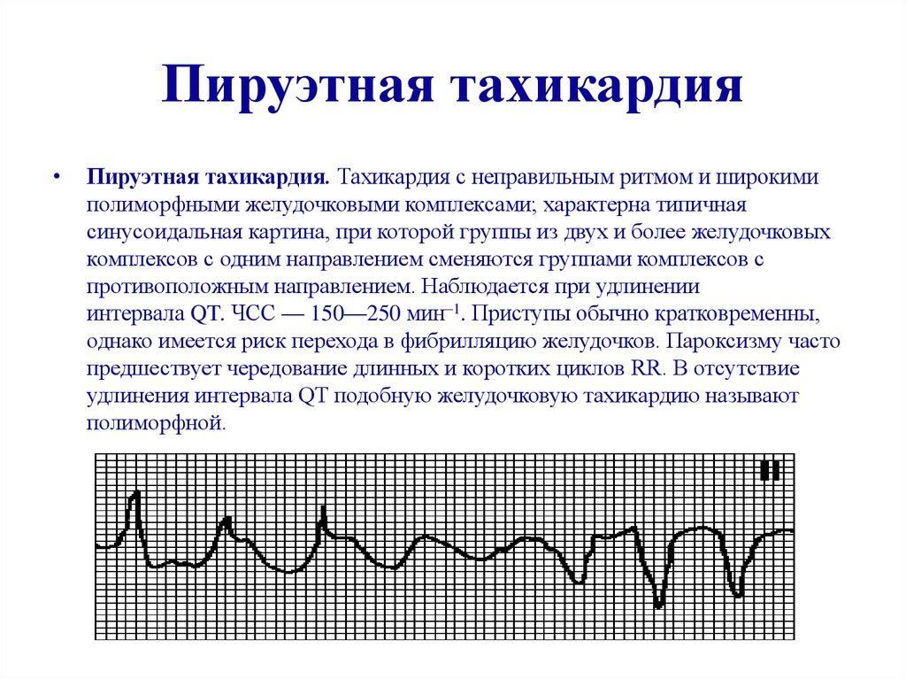 Что такое аритмия сердца и как её лечить?
