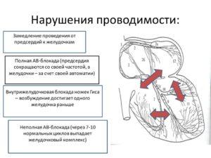 Нарушение и замедление внутрижелудочковой проводимости: что это такое, причины, симптомы и лечение