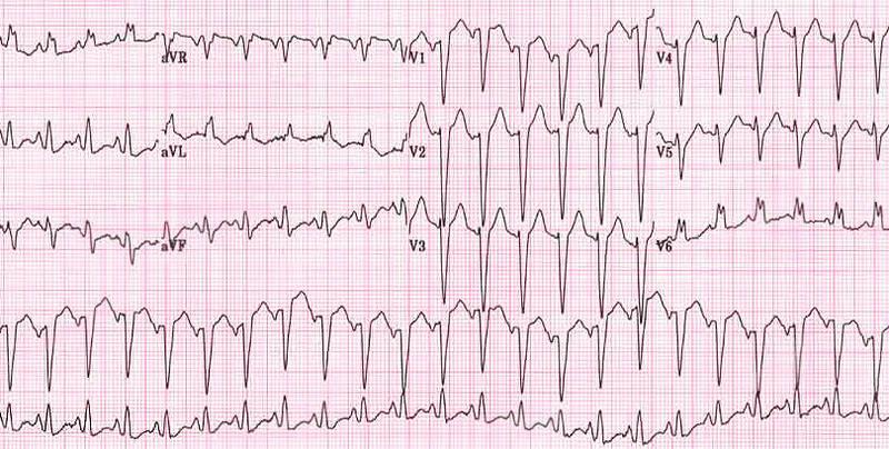 Синусовая тахикардия сердца: что это такое, основные симптомы и назначение лечения