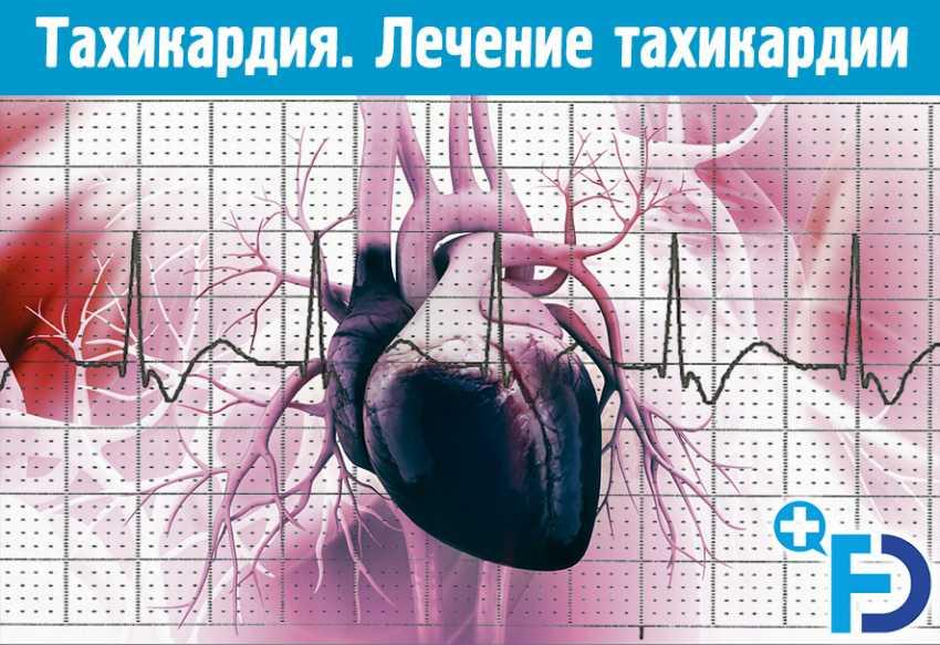 В чем опасность тахикардии для здоровья и жизни?