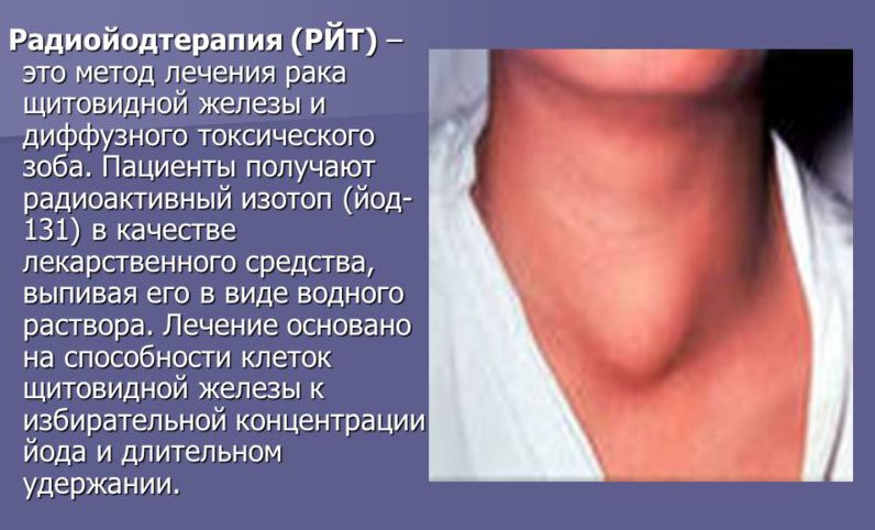 Тахикардия и щитовидная железа