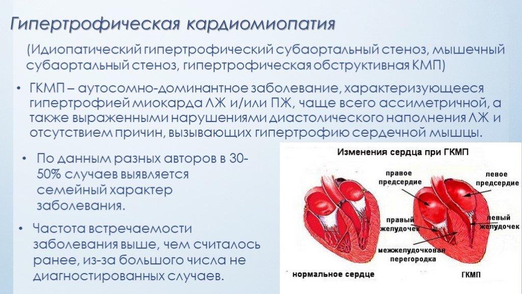 Гипертрофическая кардиомиопатия: причины, формы, необходимые обследования и лечение