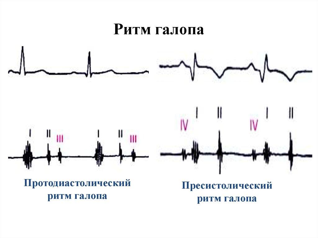 Ритм галопа в медицине
