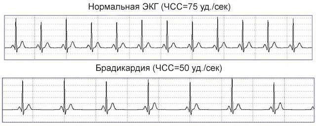 Пульс и брадикардия
