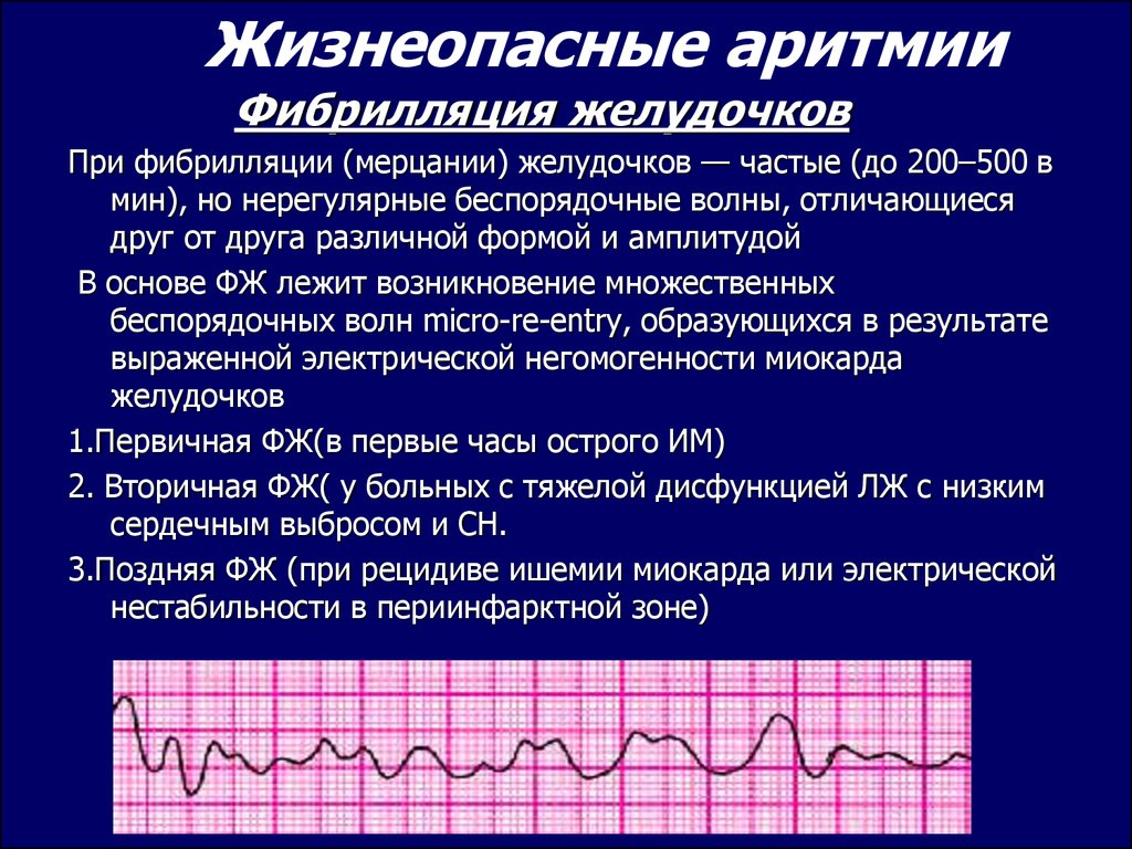 Проводимость в сердце, её замедление, нарушение: причины, локализации, чем опасно