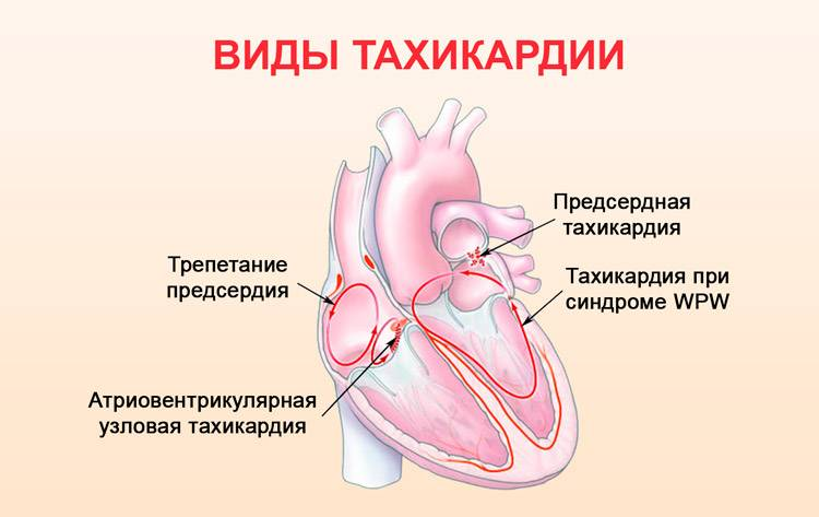 Опасно ли частое усиленное сердцебиение при всд?