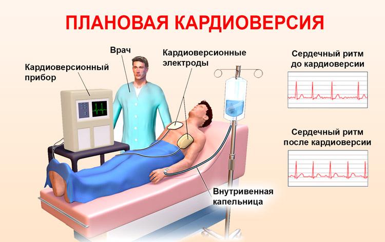 Кардиоверсия, дефибрилляция: виды, показания, проведение, результат и последствия