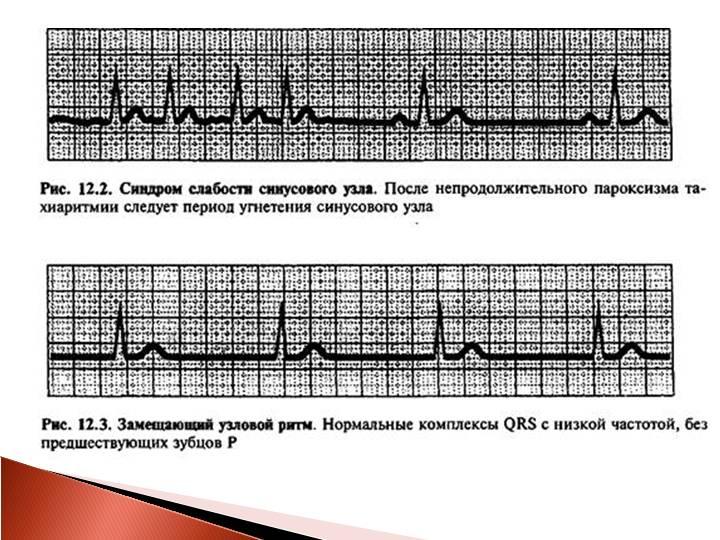 Нерегулярный синусовый ритм: вид на экг, лечение, симптоматика