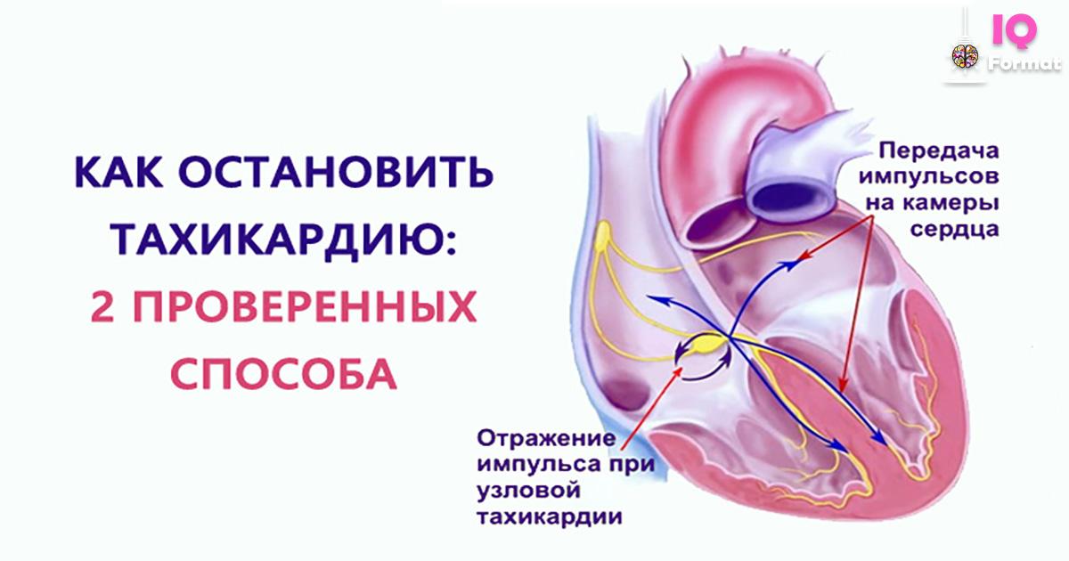 Тахикардия сердца – что это такое, причины, симптомы, как лечить тахикардию у взрослых?