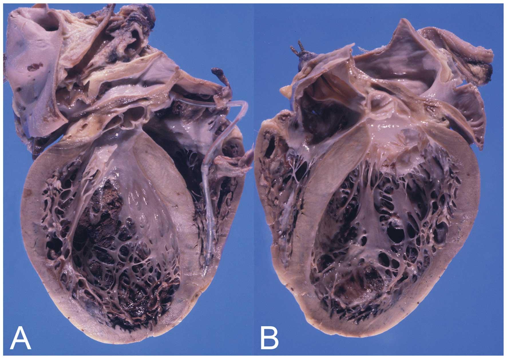 Аритмогенная дисплазия правого желудочка – симптомы, лечение, формы, стадии, диагностика