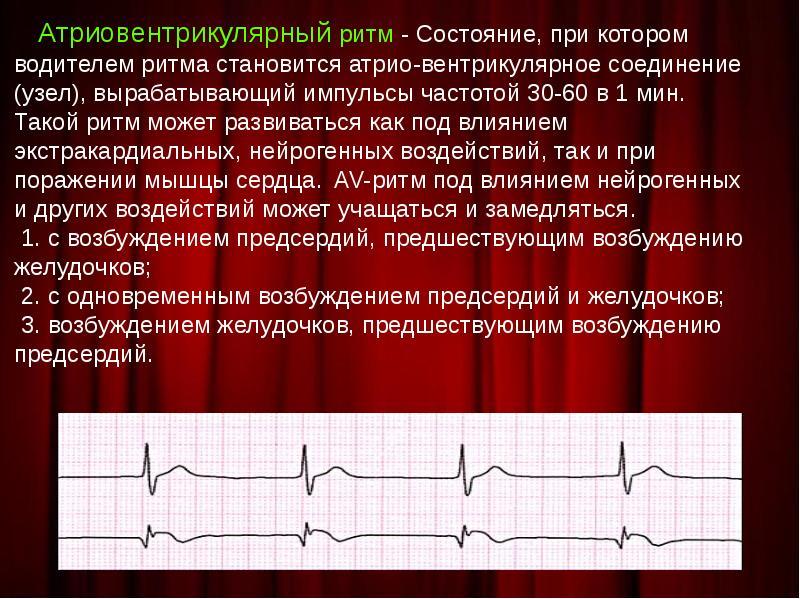 Миграция водителя ритма: постановка диагноза и прогноз пациента