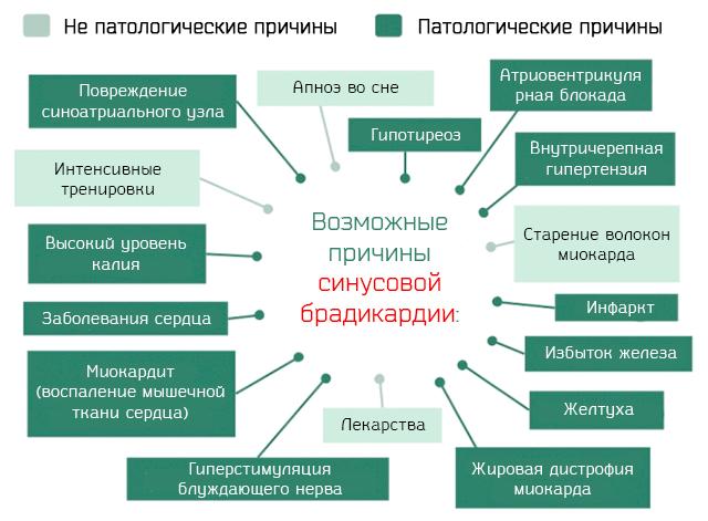 Брадикардия | симптомы | диагностика | лечение - docdoc.ru
