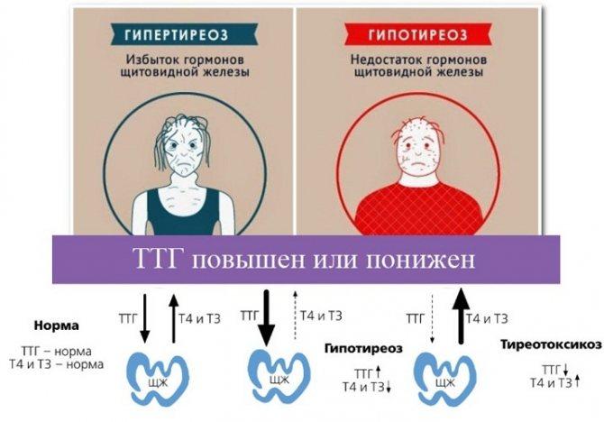 Щитовидная железа и мерцательная аритмия