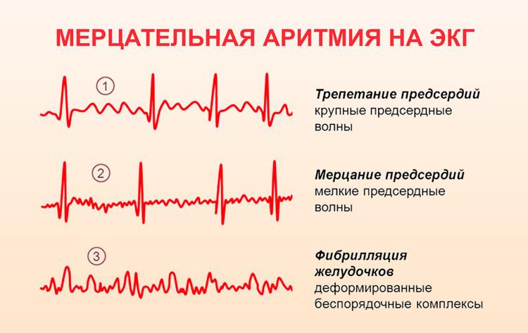 Массаж при мерцательной аритмии сердца