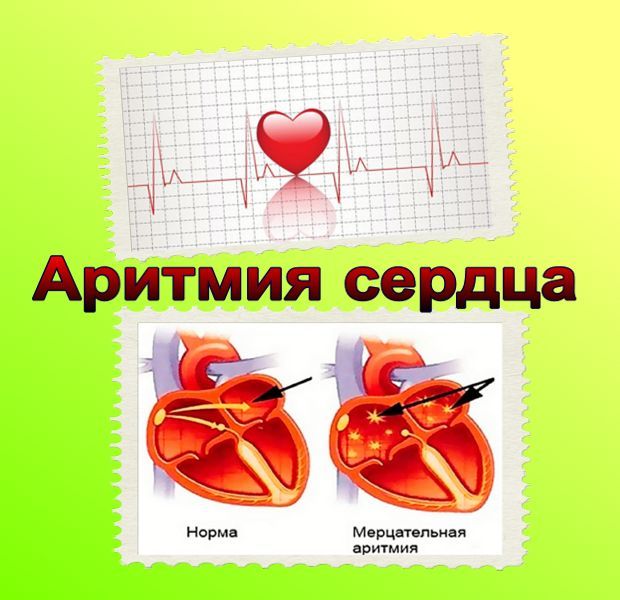 Сердечная аритмия: виды, причины, симптомы и лечение