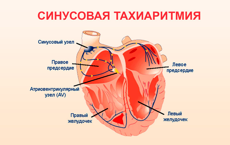 Чем опасна аритмия сердца