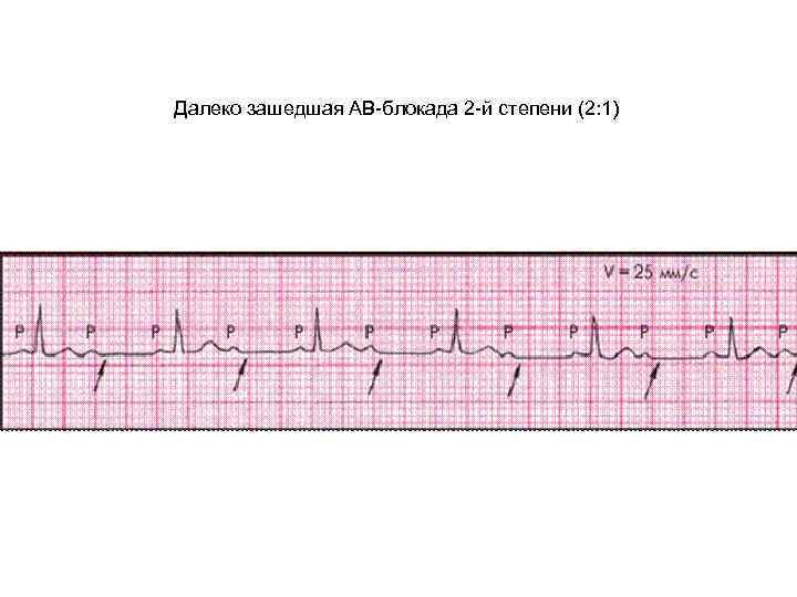 Синоатриальная (са) блокада: что это, признаки на экг, причины, лечение и прогноз жизни