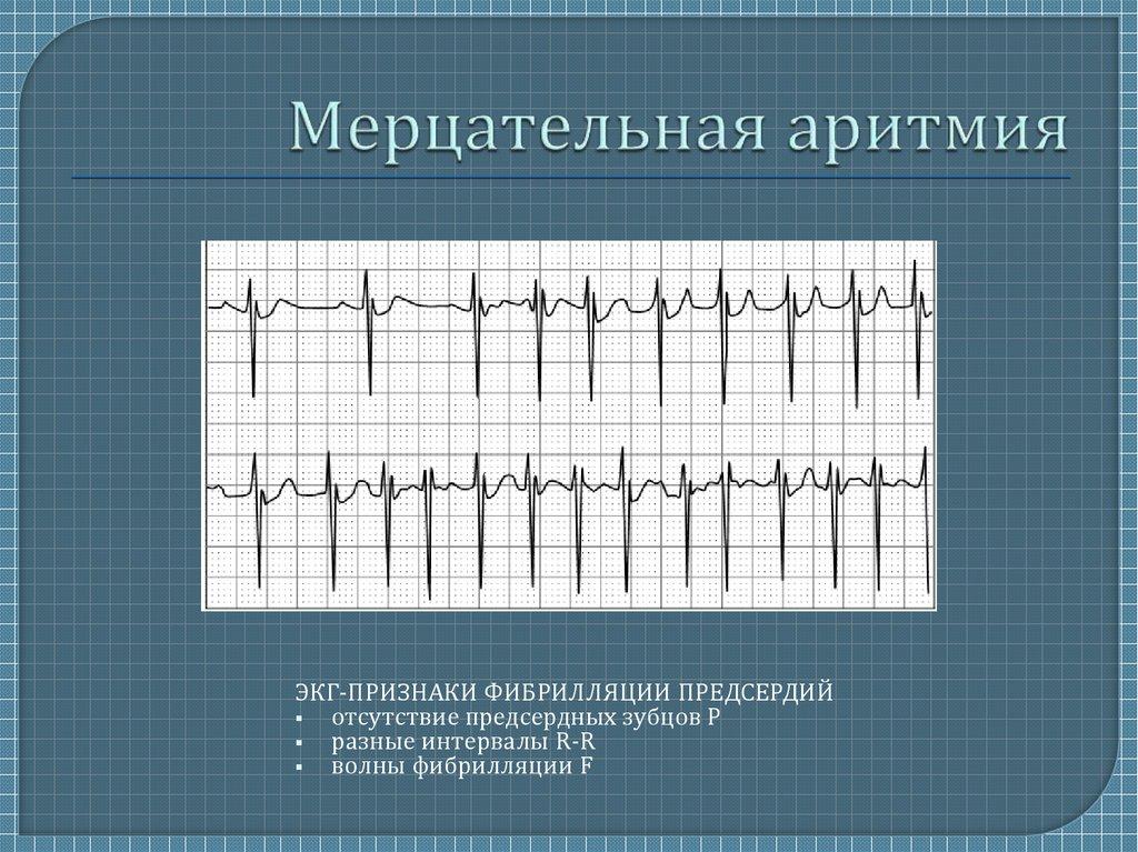 Сердечные аритмии: как развиваются, формы, симптомы, диагностика, лечение, последствия