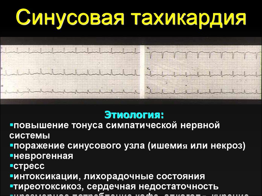 Синусовая тахикардия — википедия. что такое синусовая тахикардия