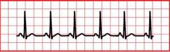 Синусовая брадиаритмия сердца у ребенка, подростка. что это такое, занятия спортом