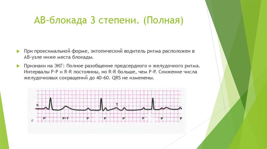 Атриовентрикулярная блокада 1 степени: что это, причины, лечение | кардио болезни