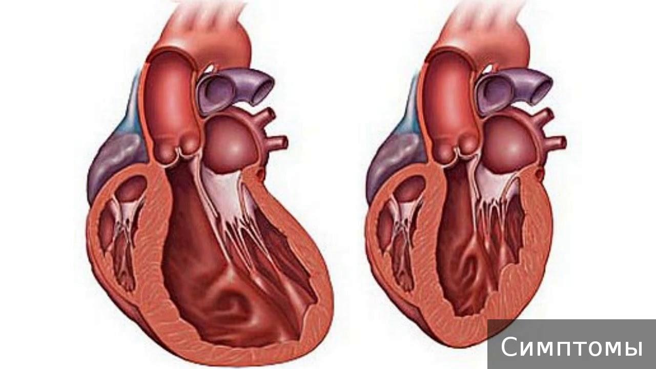 Симптомы, виды и лечение кардиомиопатии у взрослых