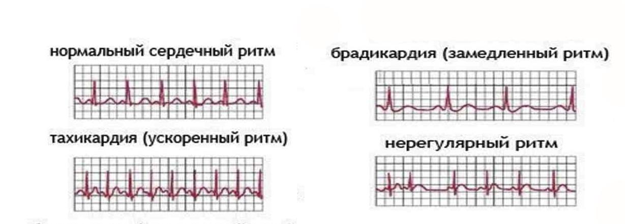 Тахикардия и брадикардия одновременно