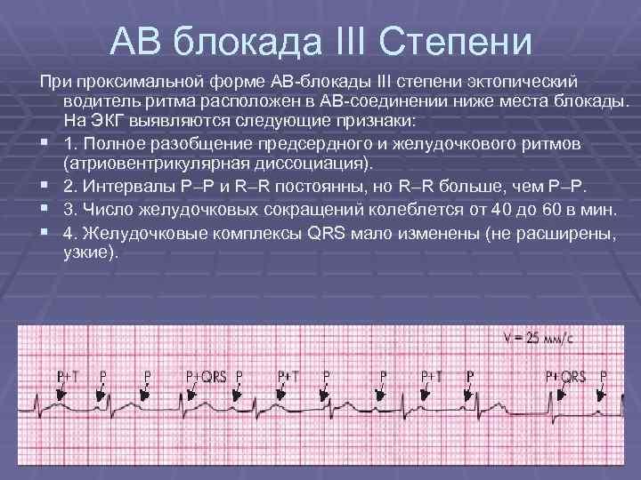 Атриовентрикулярная (ав) блокада 1 степени — что это и как лечить
