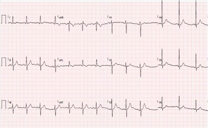 Что такое брадикардия сердца и как ее лечить у ребенка?