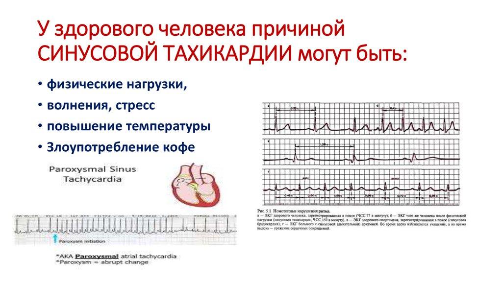 Тахикардия сердца: что это и как лечить